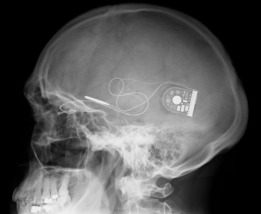 X-ray-showing-position-of-chip-and-power-supply-c-Oxford-Eye-Hospital-590x485